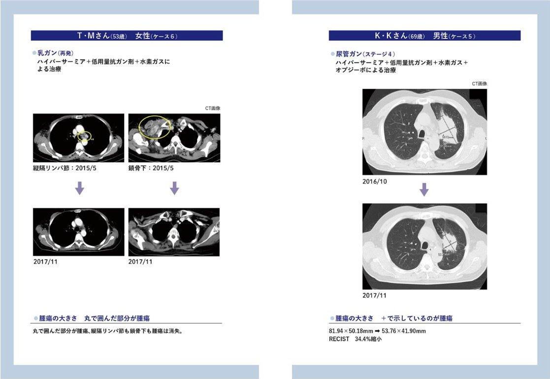 氫氣 使 癌症 消失- 赤木純兒 院長 免疫 抗癌