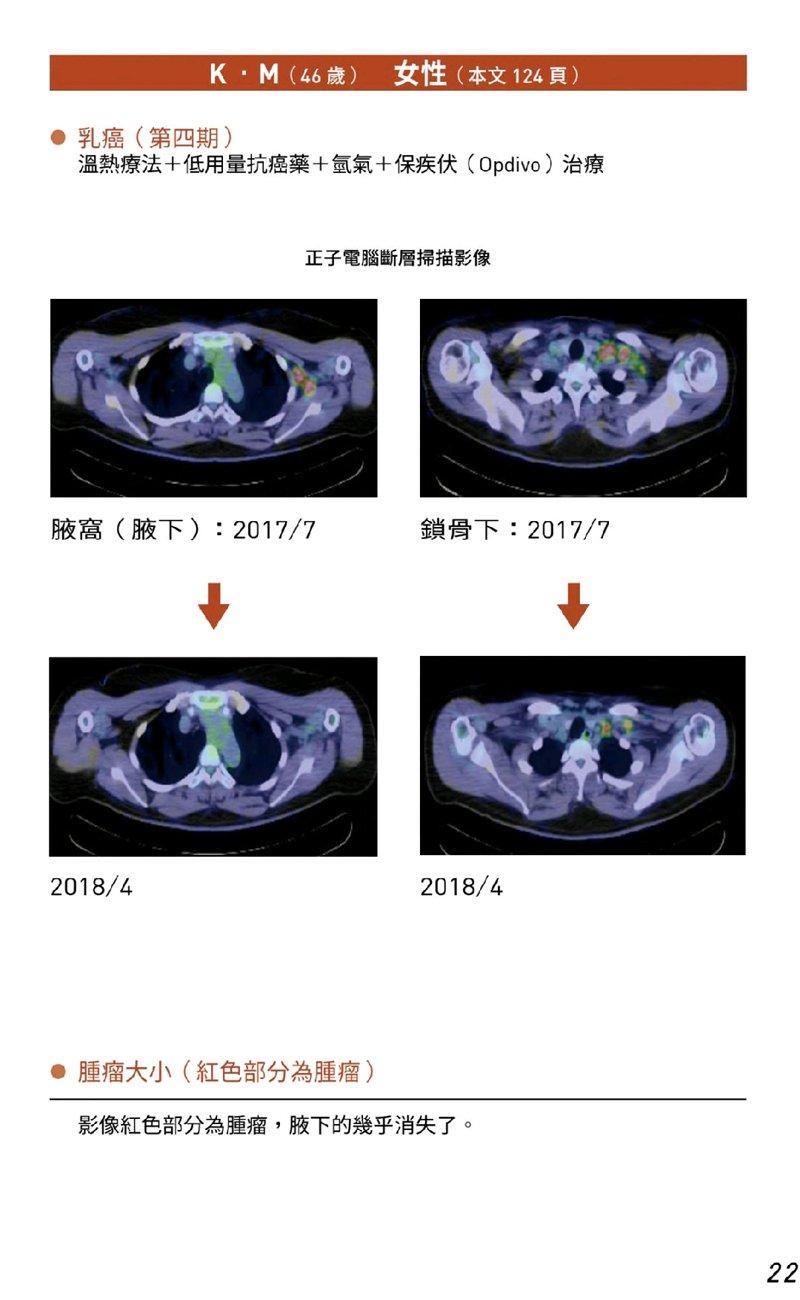 19癌末患者人體臨床試驗案例