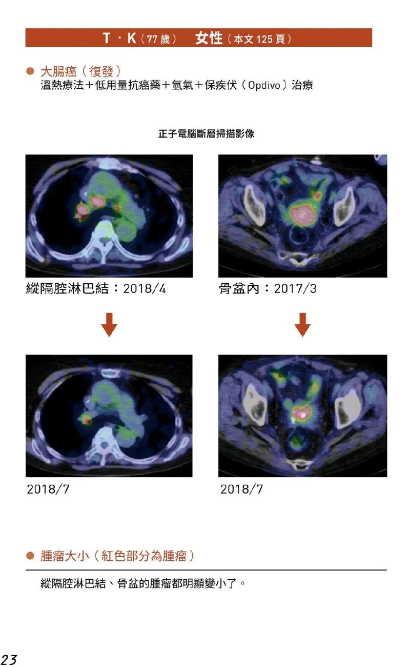 20癌末患者人體臨床試驗案例