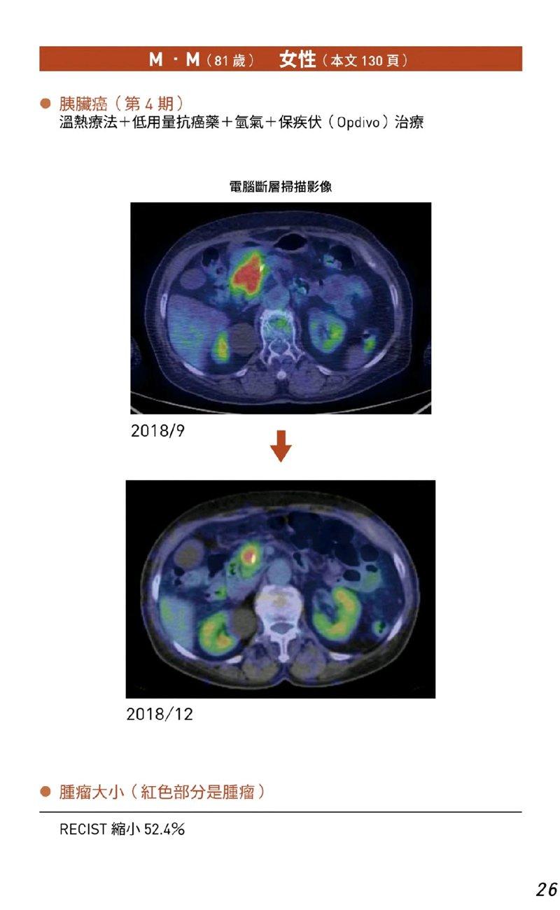 23癌末患者人體臨床試驗案例